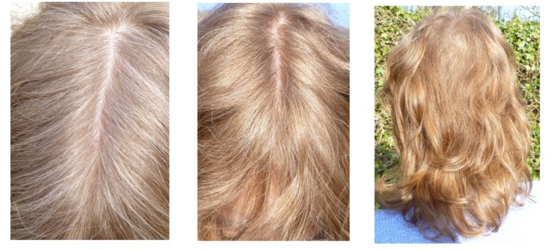 Before And After Hair Dye Gallery Blonde And Strawberry Blonde